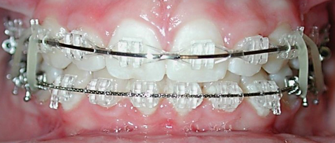 Inspire ICE Clear Braces